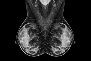 Digital Mammogram in MLO view.used in diagnosis, screening of breast cancer.