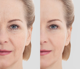 Middle age close up woman happy face before after cosmetic procedures. Skin care for wrinkled face....