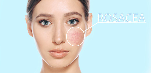 Woman with couperose on face skin. showing skin problems couperose-prone sensitive skin