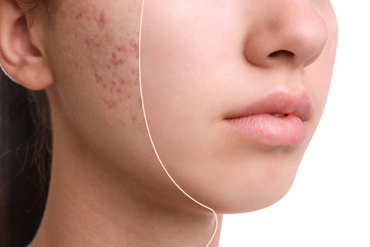 Teenage girl before and after acne treatment on white background, closeup
