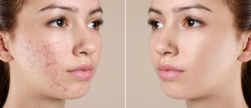 Teenage girl before and after acne treatment on beige background