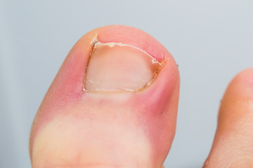 close-up photo of a toenail infection in human Wall mural