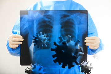 Flu coronavirus infection, respiratory problems, doctor holding a lungs Xray. 3d illustration