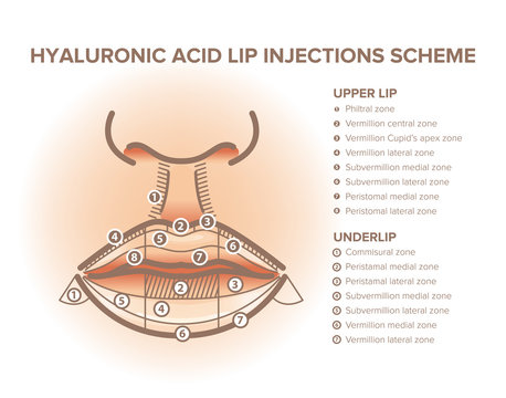 Lip injections. Lip anatomy poster. Hyaluronic acid filler