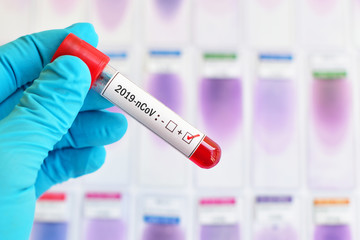 Canvas Prints Countryside Blood sample tube positive with 2019-nCoV, novel coronavirus 2019 found in Wuhan, China