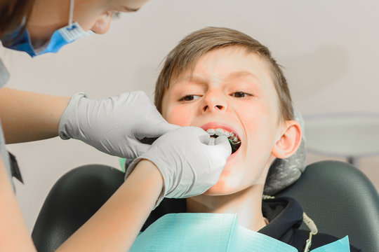 The boy with his mouth open lies in the dentist's chair while the orthodontist holds the plate on his teeth.
