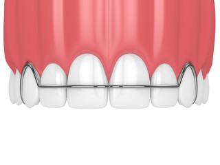 3d render of jaw with orthodontic removable retainer
