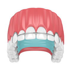 3d render of jaw with orthodontic removable retainer over whte background