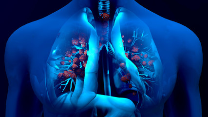 Droplets infected with a virus spray into the air, Human lungs infected by the Coronavirus or by virus, Respiratory infection caused by a virus. SARS