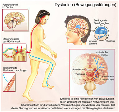 Dystonien.Bewegungsstörungen.Basalganglien