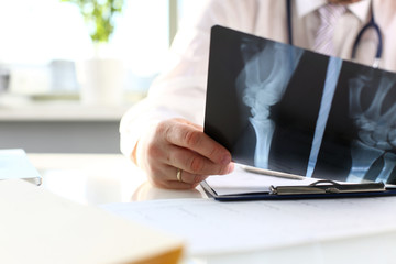 Male doctor hold in arm silver pen and look at xray photography closeup. Skeleton bone disease exam medic aid or cancer physical test in hospital for healthy lifestyle education career concept