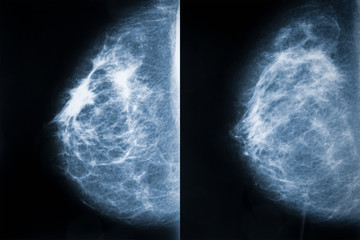 Comparison between breast carcinoma (left) and healthy breast (right). Breast cancer x-ray images or radiographs. Medical and healthcare imagery.