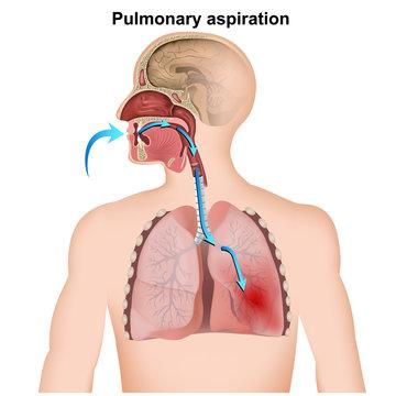 pulmonary aspiration medical infographic  on white background