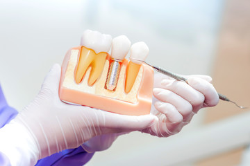 Dentist with tooth implant false teeth. Dentistry and healthcare at dental clinic.