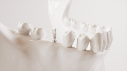 Tooth implantation picture series V02 - 7 of 8 - 3D Rendering