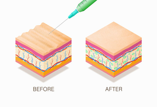 Anti-aging concept with before and after beauty treatment. Good example of how it works cosmetic filler or Dermal fillers as a cream or injection. Vector illustration skin structure.