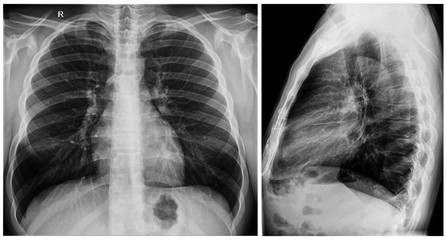 Radiography x-ray film of human chest