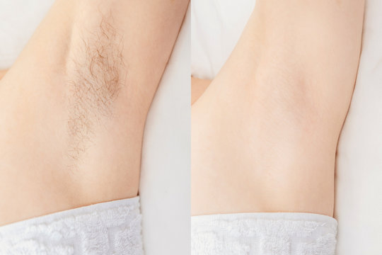 Women underarm hair removal. Concept before and after shaving sugar depilation laser