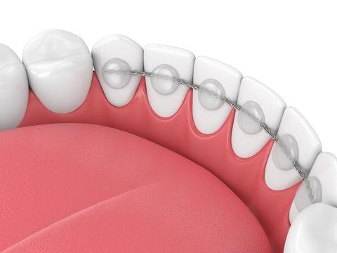 3d render of dental bonded retainer on lower jaw