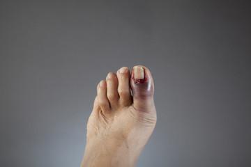 Broken Toe on left foot Wall mural