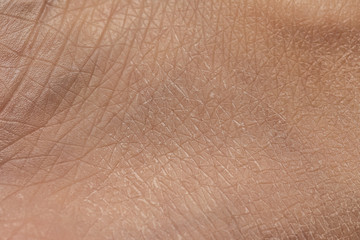 Dry skin of caucasian lady closeup, rehydrating and rejuvenate treatment concept