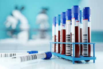 A row of human blood samples in a medical laboratory ready to be tested. healthcare background 3D illustration.