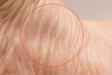 Wrinkles in the skin of the sole of a Caucasian woman's foot highlighted by a red circle