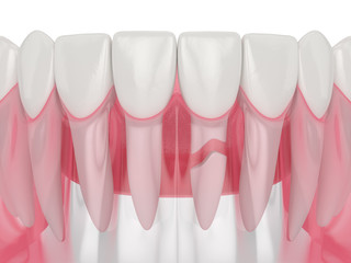 3d render of jaw with cracked tooth root