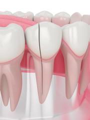 3d render of jaw with split tooth