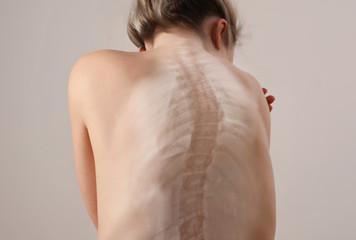 Back pain, female Scoliosis Spine curve Anatomy,