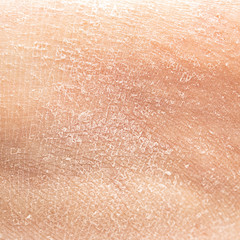 Dry human skin of a woman leg. Concept of skin rehydration cosmetics to keep the skin young