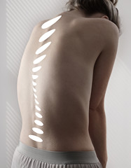 Woman with back pain, Scoliosis spine curve. Female body aesthetic,healthcare concept