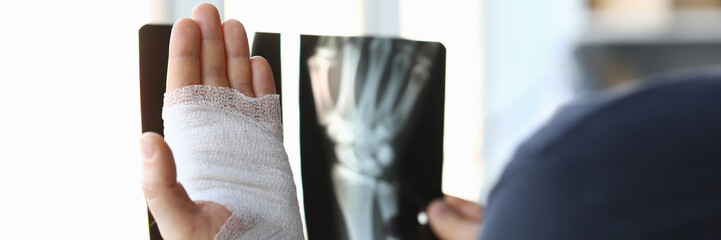 Male bandaged hand holds xray image closeup. Injury and sprain treatment concept
