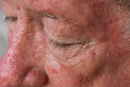 Senior male needing treatment for basal cell carcinoma after an active lifetime in the sun in Queensland, Australia which has the highest rate of skin cancer.