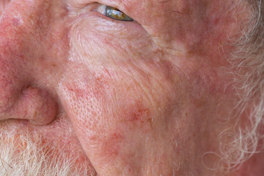 Old man needing treatment for basal cell carcinoma after an active lifetime in the sun in Queensland, Australia which has the highest rate of skin cancer.