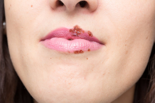 everything you should know about herpes simplex 1: virus concept