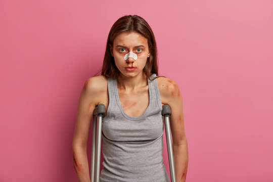 Health insurance and work accident concept. Disabled woman with many bruises and wounds, bandage on broken nose, has long term injury, walks on crutches, has knee dislocation and muscle sprain