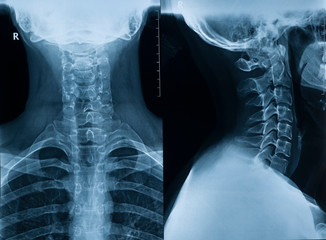 X-ray picture of the cervical spine of a man in two projections in full view and profile