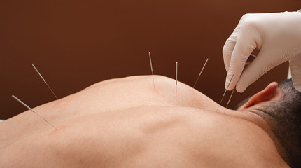 Close-up needle in the back of man during acupuncture procedure on a brown background. Acupuncture. Macro