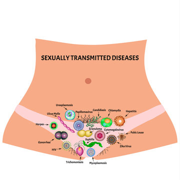 Viral and bacterial infections. Sexually transmitted diseases. Infographics. Vector illustration on isolated background.