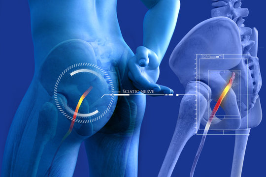 Pinched human sciatic nerve, anatomical vision. 3d illustration.