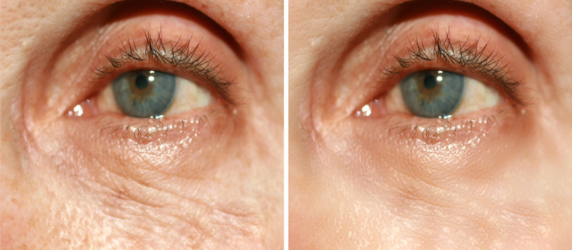Wrinkles under the eyes. Wrinkles on the skin of the face. Flabby eyelids. Before and after treatment with a cosmetic procedure