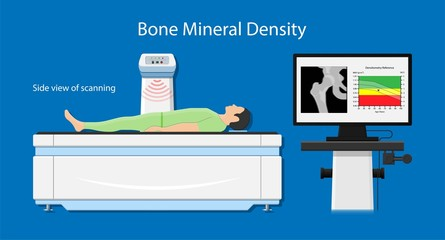Bone mineral density (BMD) osteoporosis dual energy X-ray