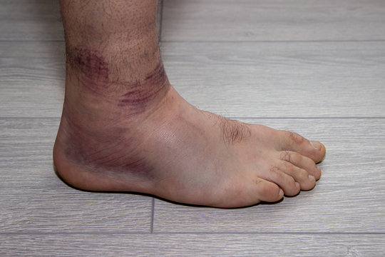 young man with sprained ankle on the floor.