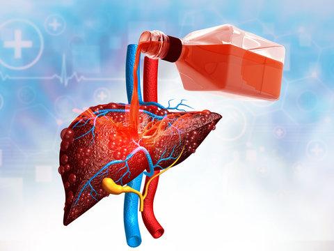 Alcohol with liver. Alcoholic liver damage concpet. 3d illustration.