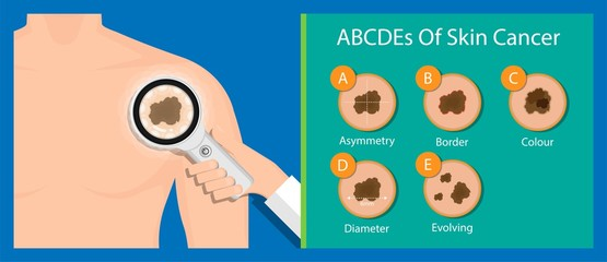 Skin cancer treatment diagnosis medical patient screening