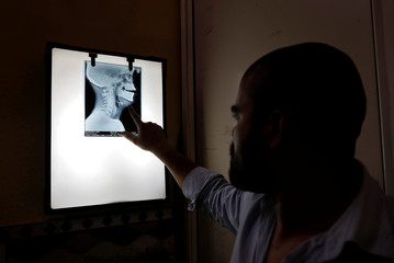 A medic at Al Hind hospital points to a pellet in an x-ray of a Muslim teenager who was injured in a clash between people demonstrating for and against a new citizenship law, in a riot affected area in New Delhi