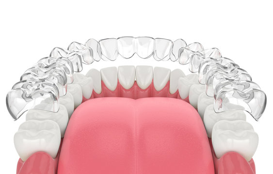 3d render of invisalign removable retainer with lower jaw
