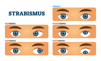 Strabismus or cross eyed vision condition, vector illustrations