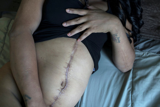 Shannel Cruz shows the large scar on her abdomen in Charlottesville